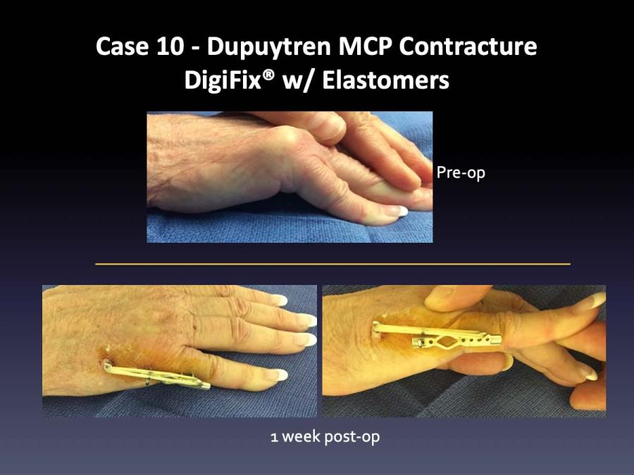 Case 10: Dupuytren MCP Contracture DigiFix® w/ Elastomers