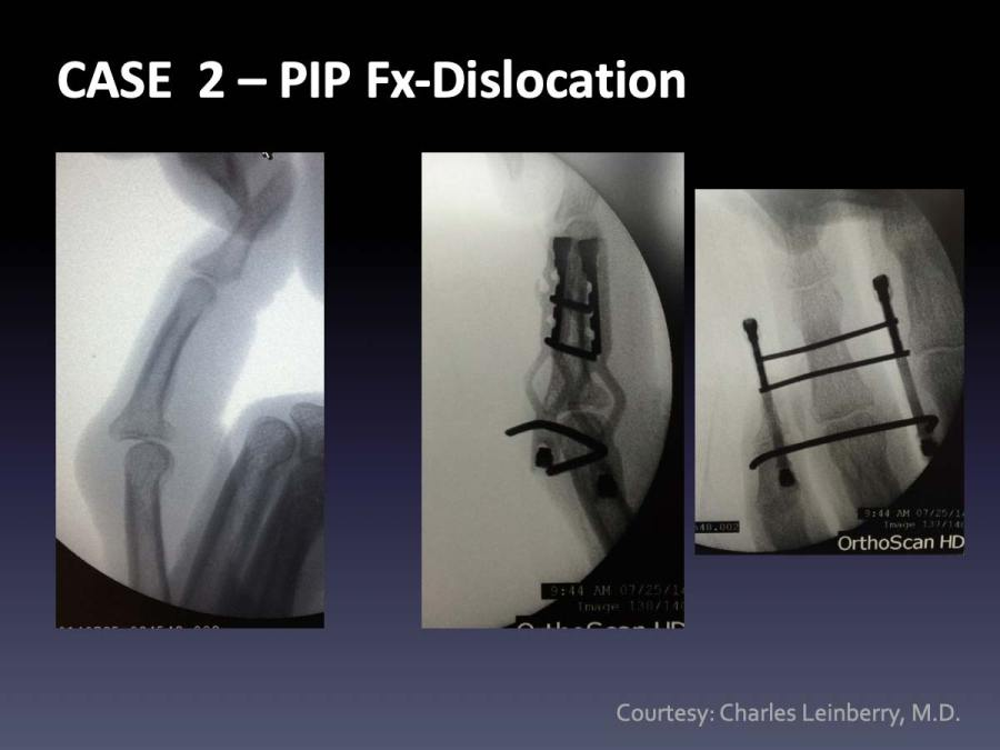 CASE  2: PIP Fx-Dislocation