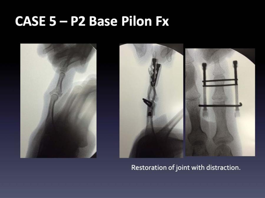 CASE 5: P2 Base Pilon Fx