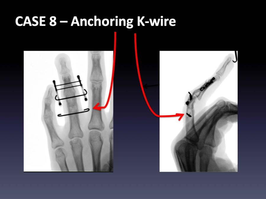 CASE 8: Anchoring K-wire