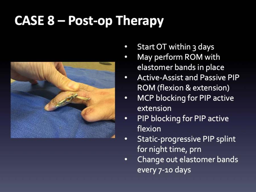 CASE 8: Post-op Therapy
