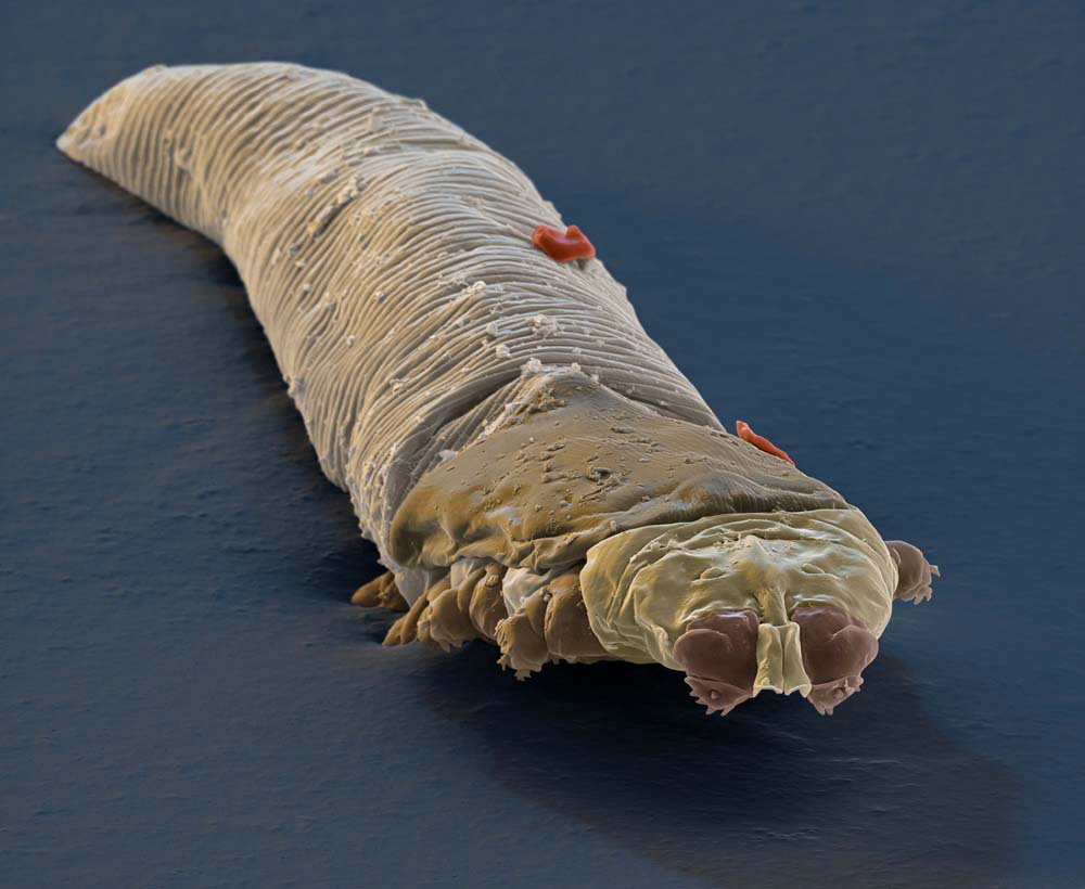 Esta pequeña e inquietante criatura vive en tu cuerpo... y no vas a creer DONDE