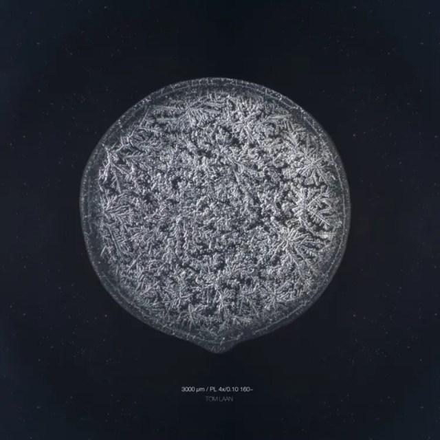 lagrimas-microscopio3