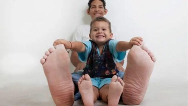 venezolano-con-pies-mas-grandes-del-mundo4