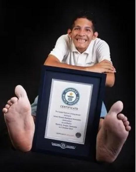 venezolano-con-pies-mas-grandes-del-mundo6