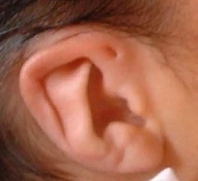 agujero-sobre-oreja-3