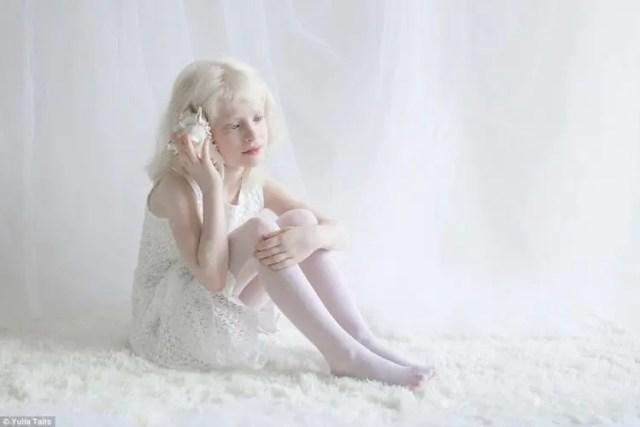 fotos-personas-albinas-10