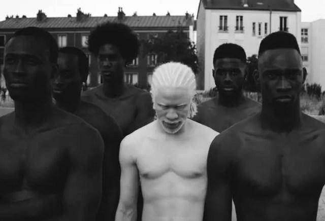 fotos-personas-albinas-12