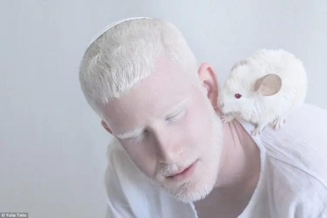 fotos-personas-albinas-7