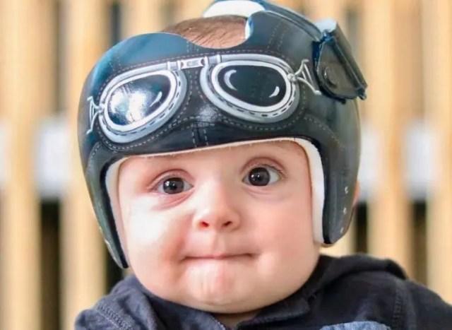 cascos-ortopedicos-para-bebes-muy-divertidos-04