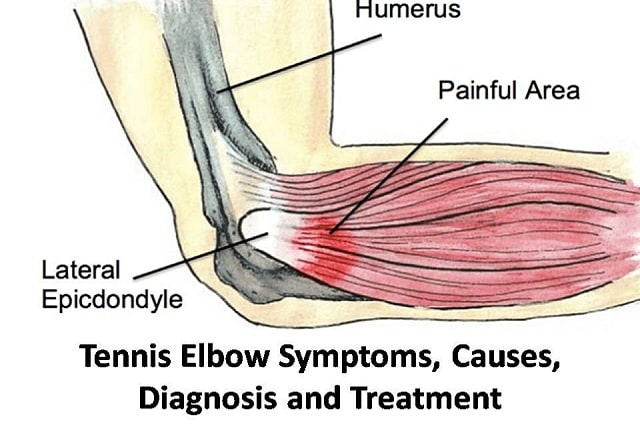 The Complete Guide of Tennis Elbow Symptoms, Causes, Diagnosis and Treatment
