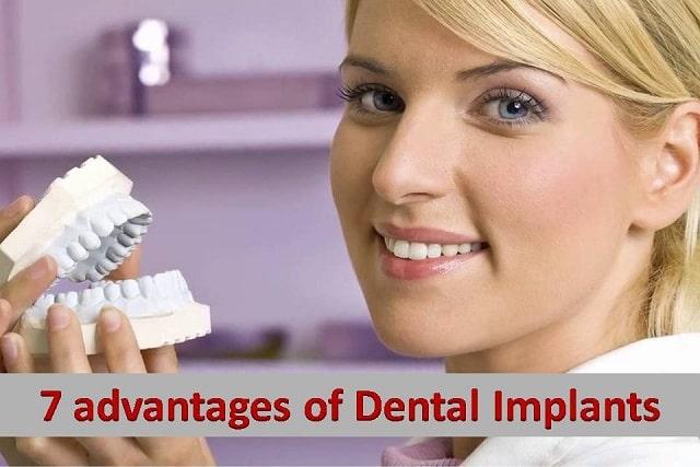 7 Advantages of Dental Implants