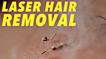Laser Hair Removal In Slow Motion
