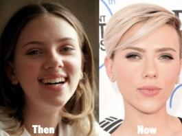 nose job without surgery