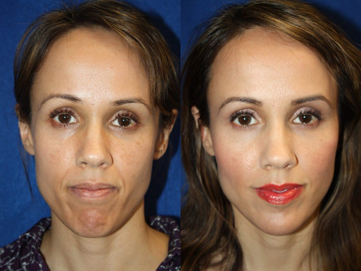 Collagen injections Boston