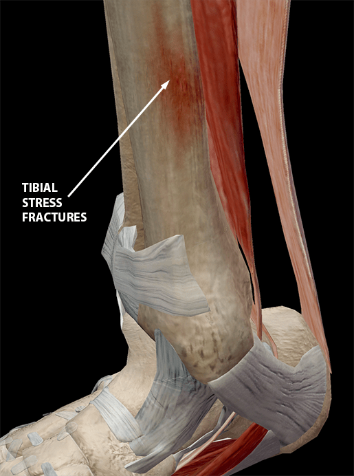 diagram of tibia stress fracture 3 phase generator alternator wiring hold on to your tibias the anatomy and causes shin splints