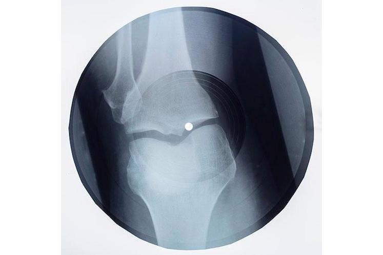 Massive Attack X-Ray Records 4