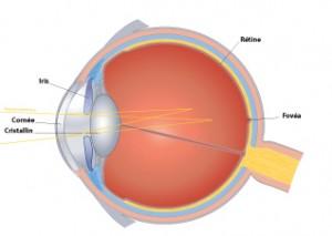 astigmatisme-oeil-astigmate