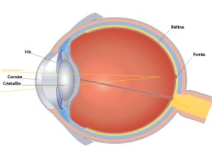 Les défauts de la vision la myopie