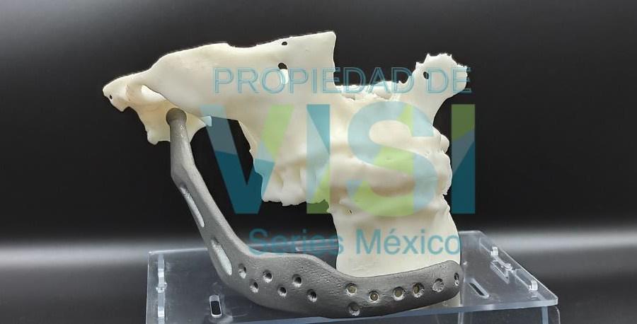 diseñar prótesis