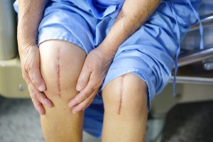 person sitting with scars on knees showing from knee replacement surgery