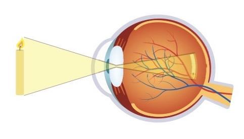 cum să distingi miopia tipuri de vedere slabă