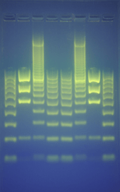 DNA 'runs' on agarose gel using electrophoresis