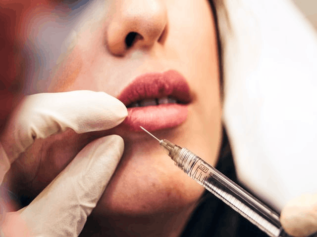 The Hidden Side Effect Of Lip Injection You Should Know