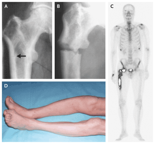 Metabolic Bone Disease - Symptoms, Causes, Diagnosis, Treatment And Prevention In Human Pagets disease