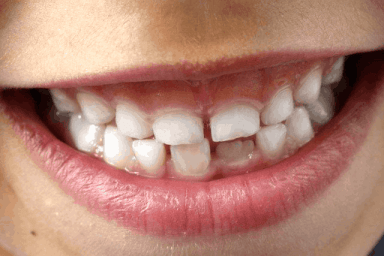 Benefits Of Early Orthodontic Treatment (Between The 8-10 Ages) 3