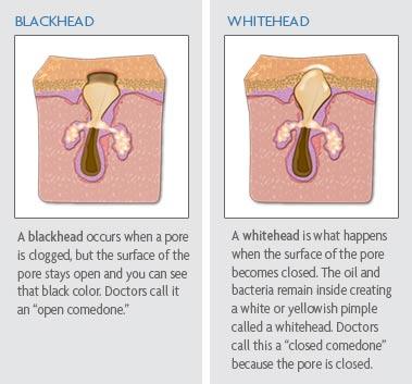 blackhead dan whitehead