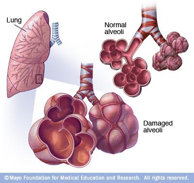 Emfisema secara beransur-ansur kerosakan pundi udara (alveoli) dalam paru-paru anda, membuat anda semakin lebih pendek nafas. Emfisema adalah salah satu daripada beberapa penyakit yang dikenali sebagai penyakit pulmonari obstruktif kronik (COPD).