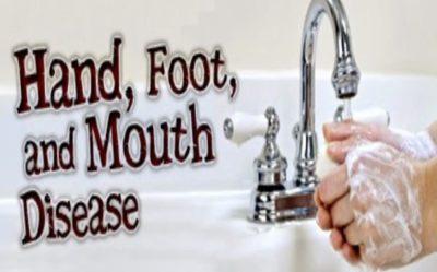 Bila Anak Kena HFMD | Penyakit Tangan Kaki Dan Mulut