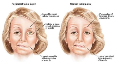 simptom bell's palsy