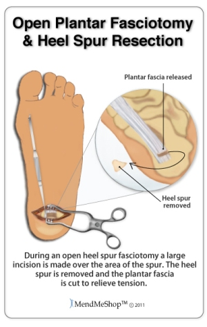 Open Plantar Fasciotomy and Heel Spur Resection. Plantar fascia released, Heel spur removed. During an open heel spur fasciotomy a large incision is made over the area of the spur. The heel spur is removed and the plantar fascia is cut to relieve tension.
