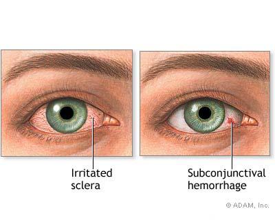 pendarahan-subconjunctival