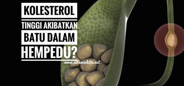 Kolesterol Tinggi Akibatkan Batu Karang Dalam Hempedu