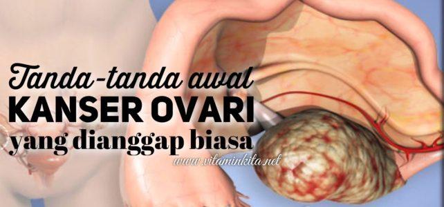 Tanda-tanda Awal Kanser Ovari Yang Selalunya Dianggap Masalah Biasa