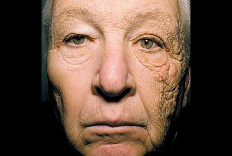 tua sebelah wajah akibat sinaran uv