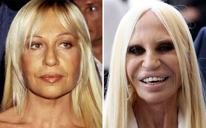 chirurgia estetica Donatella Versace