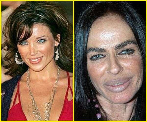 Michaela Romanini chirurgia estetica