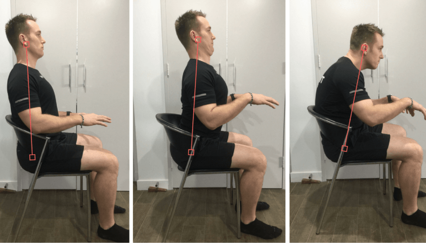 man showing 3 different postures, normal, lordotic, kyphotic.