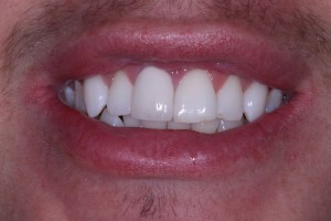 Complete crown fixed - Viva Dental Studio, Hornchurch