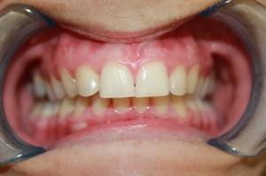 After Discreet Braces Viva Dental Studio Hornchurch