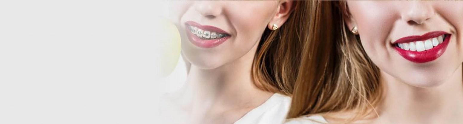 Before After Orthodontics Viva Dental Studio Essex