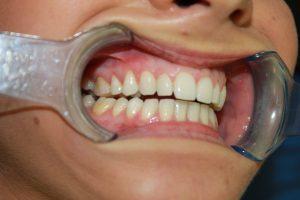 Before Braces Viva Dental Studio Essex