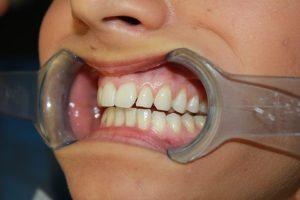 Before Braces Viva Dental Studio Hornchurch Essex
