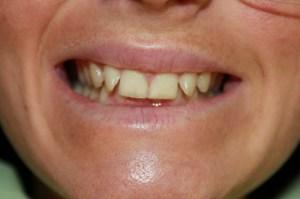 Before Discreet Braces Viva Dental Studio Essex