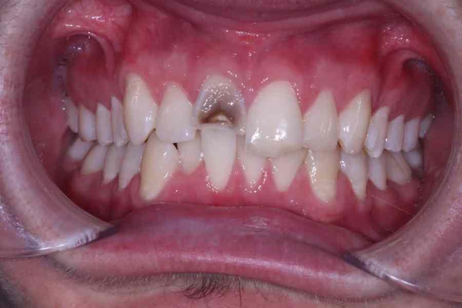 Broken Tooth before Cosmetic Bonding Viva Dental Studio Hornchurch