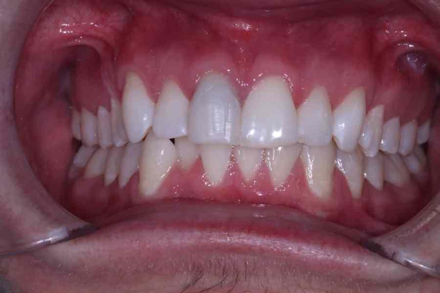 Post Whiting Cosmetic Dentistry Viva Dental Studio Hornchurch